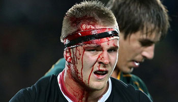 Sam Cane's bloody headclash with teammate Owen Franks