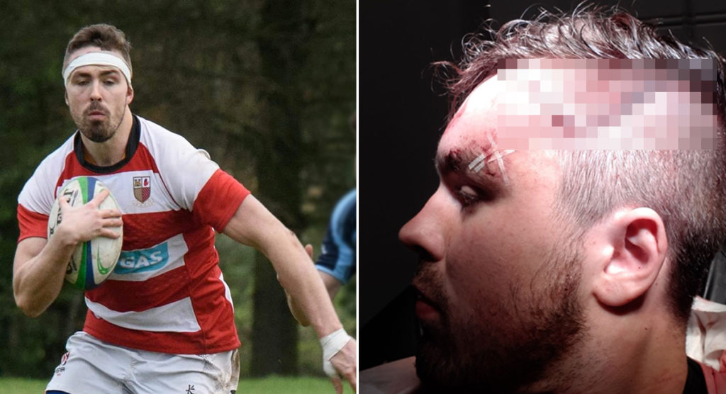 Player suffers horrific injury as boot slices through his scalp