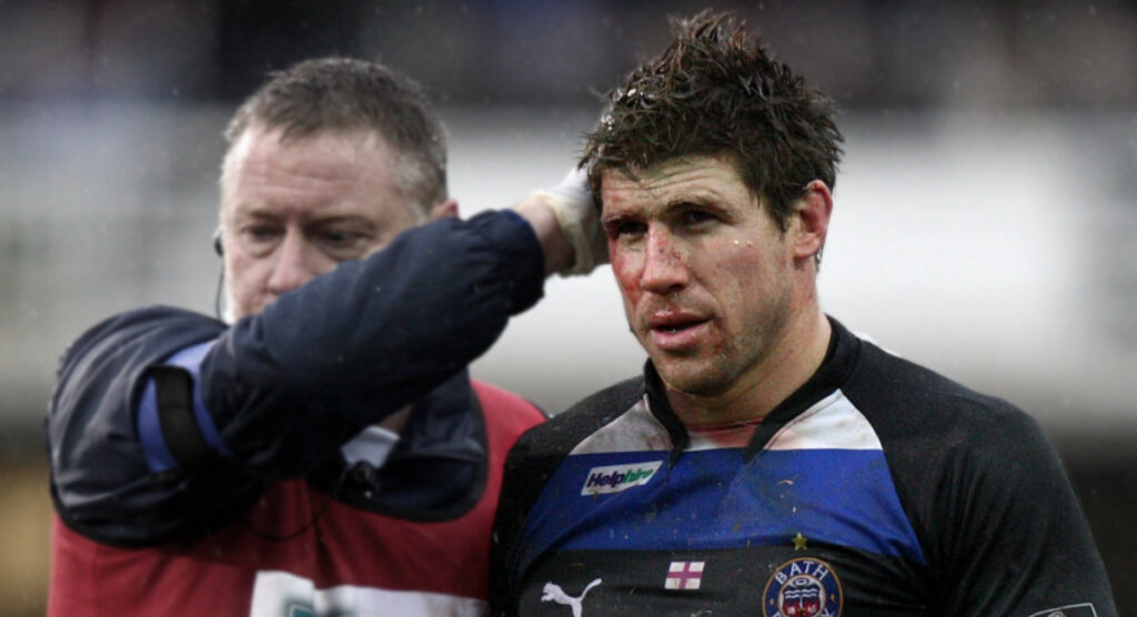 Legal action planned for concussion neglect as former pros take on Rugby authorities