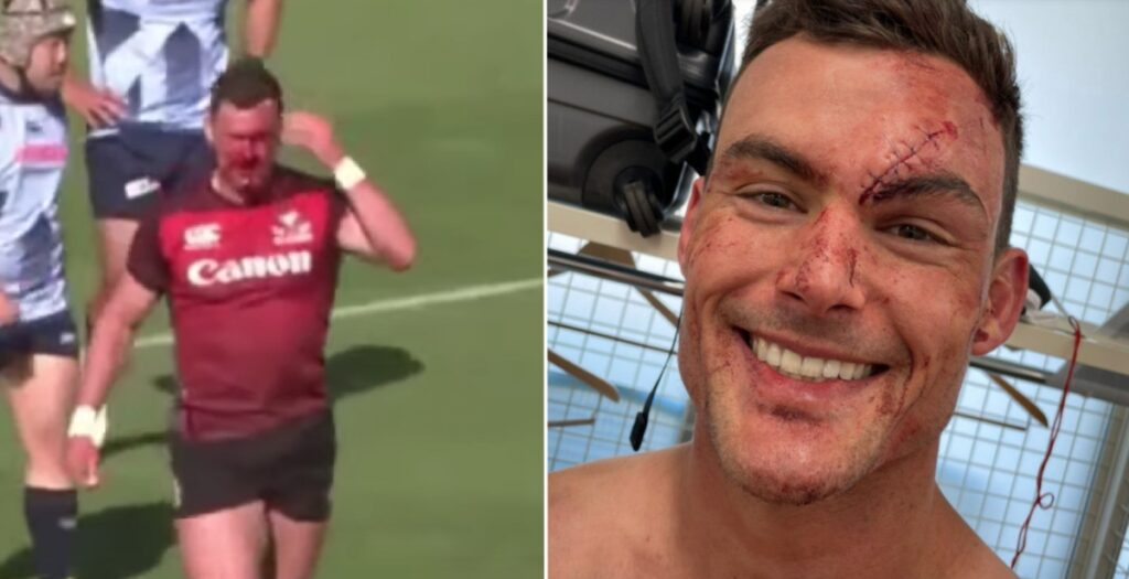 The full story of THAT brutal Jesse Kriel face wound in Japanese Top League
