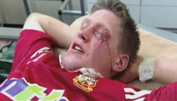 Ronan O'Gara pummeled by Duncan Macrae - Lions Tour 2001